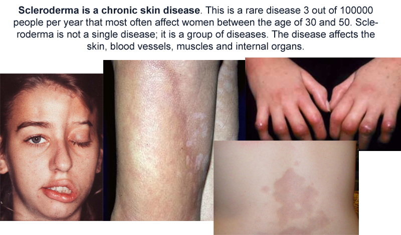 All about scleroderma disease health and safety training community these happen when your immune system which usually protects you from germs turns on your body and causes inflammation of skin and other organs publicscrutiny Choice Image